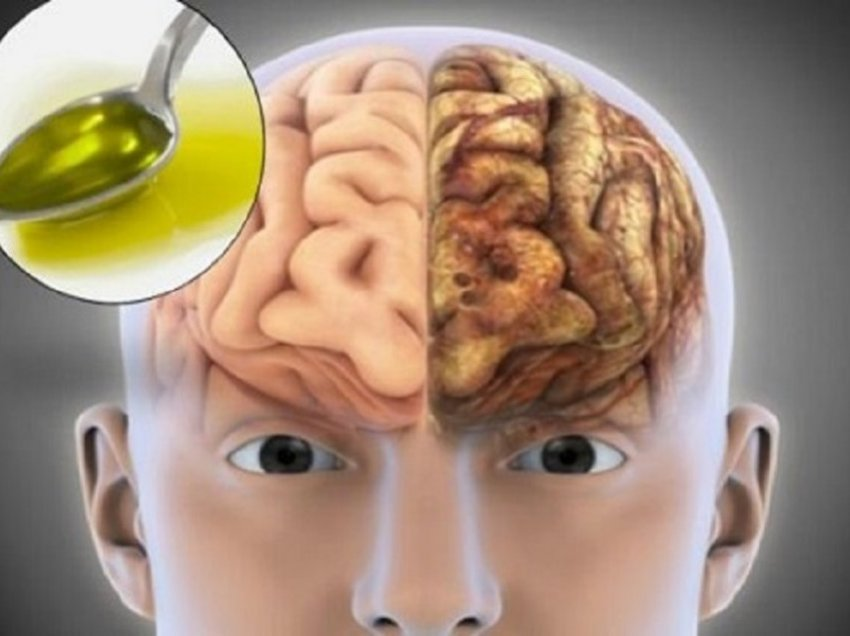 Olive oil makes your Brain work better and protects against Alzheimer's
