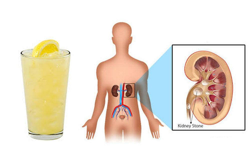 Does Lemonade Prevents Kidney Stones